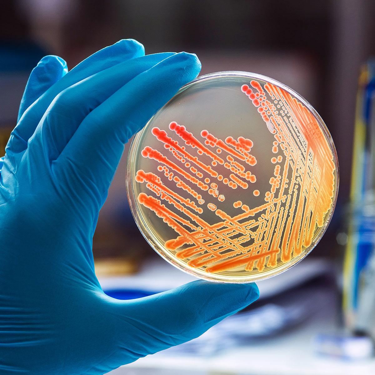 Teste de intercomparare microbiologie